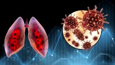 Descoperire crucială. Oamenii de știință au aflat cum infectează coronavirusul celulele și cum se ascunde de sistemul imunitar