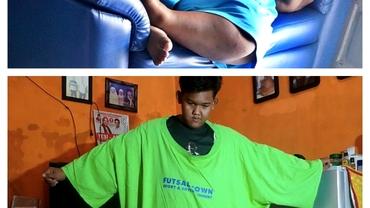 Cel mai gras copil din lume a pierdut jumătate din greutate. Cum arată acum
