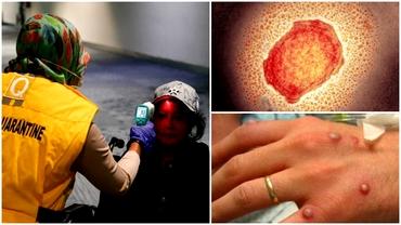 O nouă boală infecțioasă amenință Marea Britanie. Ce este variola maimuțelor și cum se manifestă
