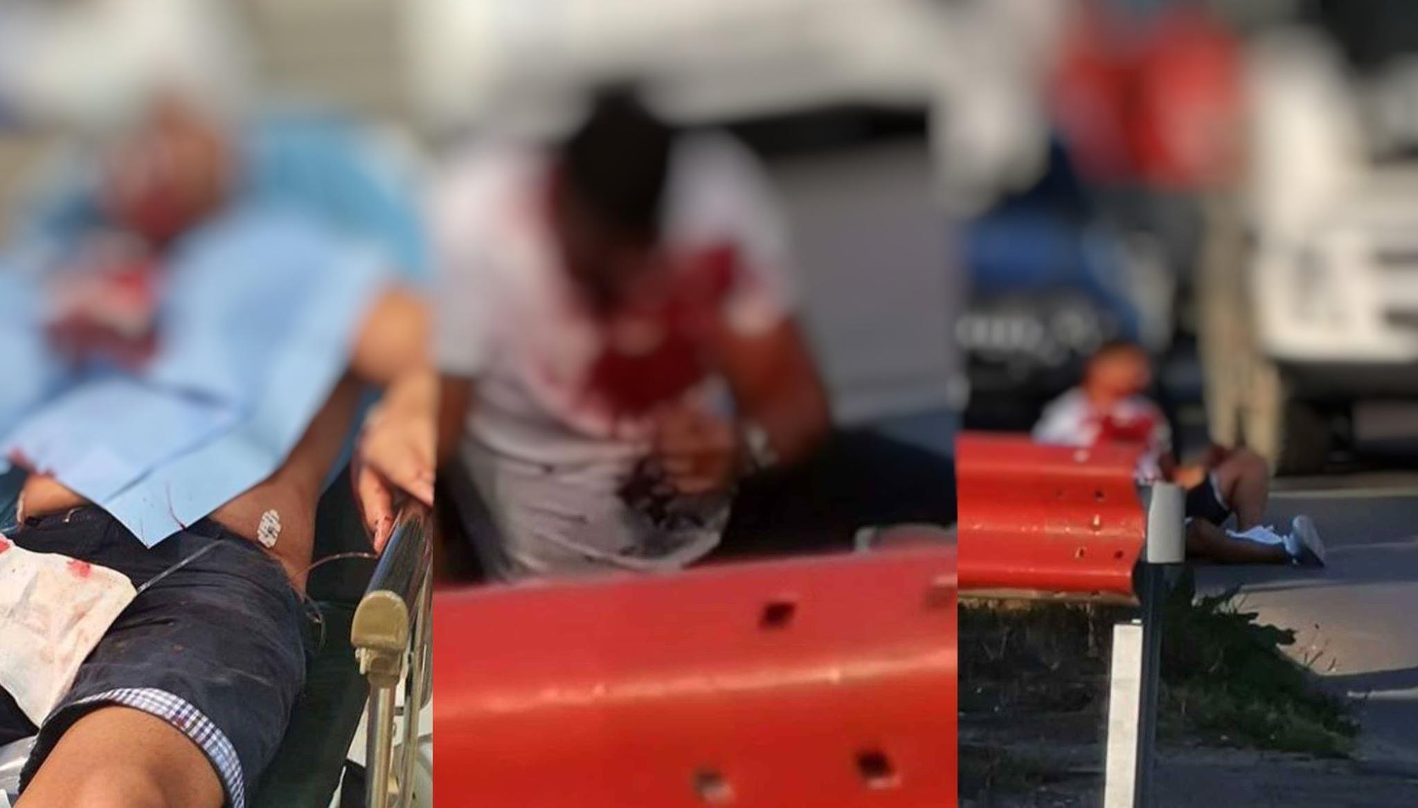 Fratele Alinei Pană de la Exatlon a fost bătut și tăiat de interlopi