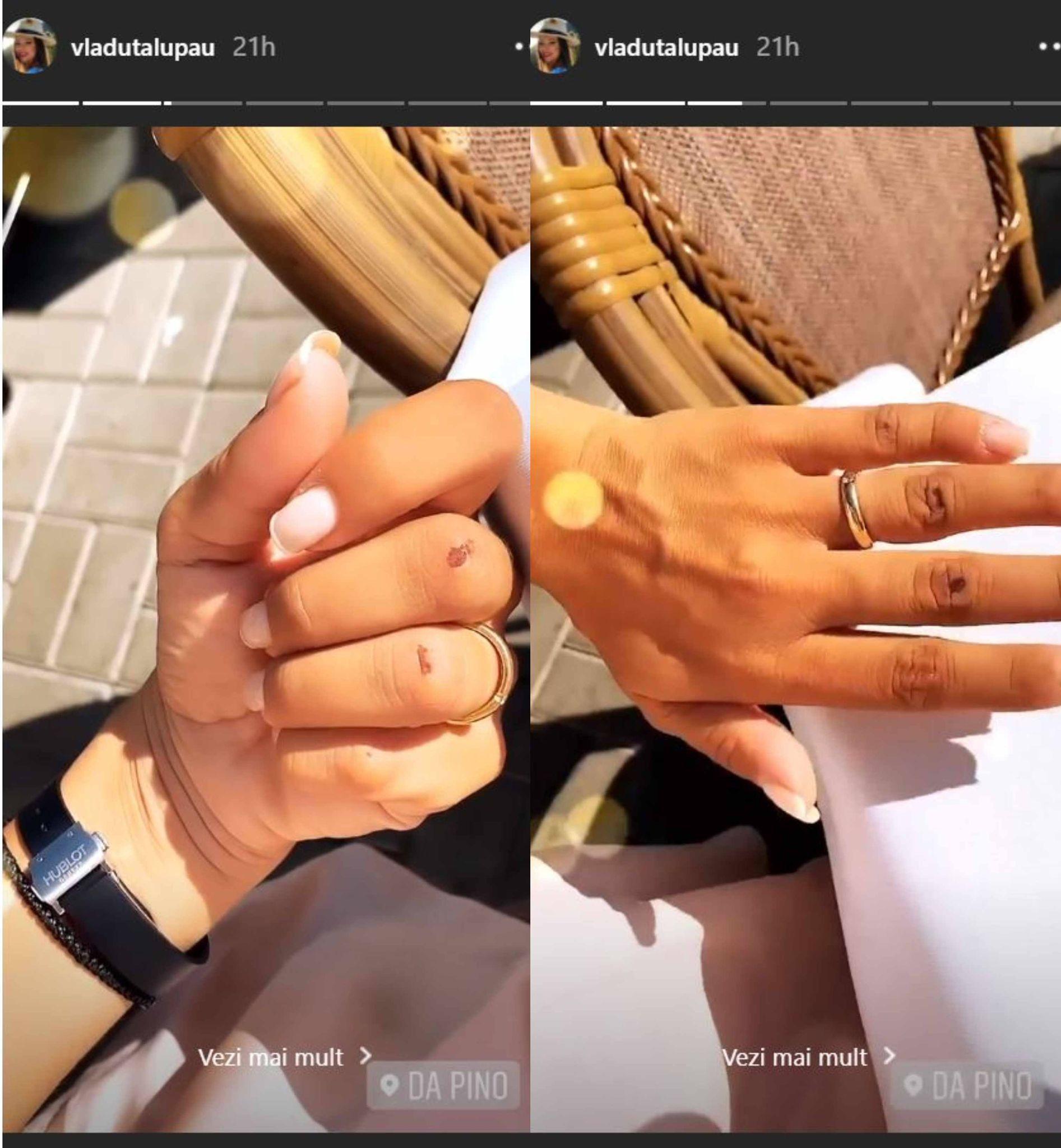 Vlăduța Lupău, rănită la degete în urma unei căzături