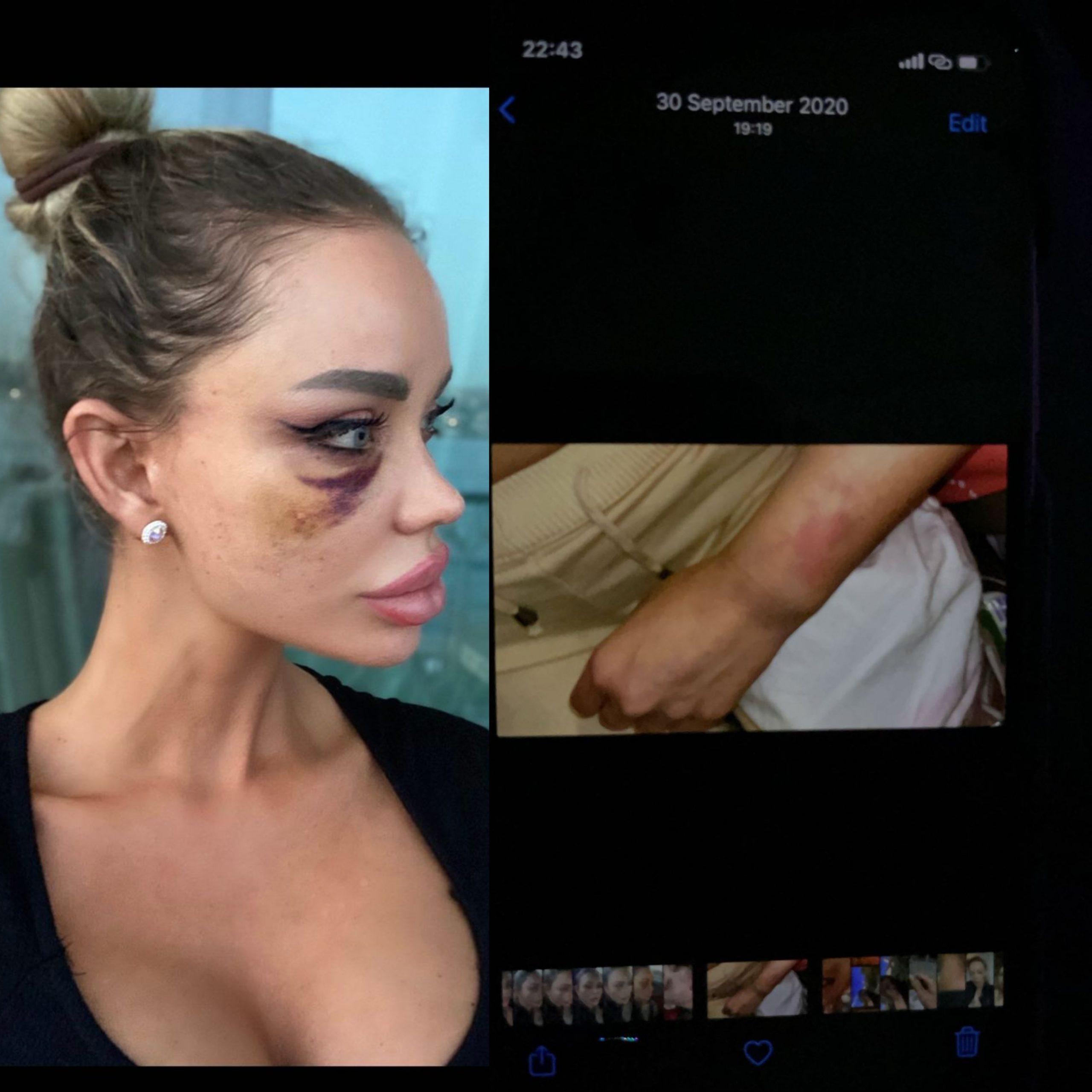Bianca Drăgușanu, imagini de când a fost agresată fizic