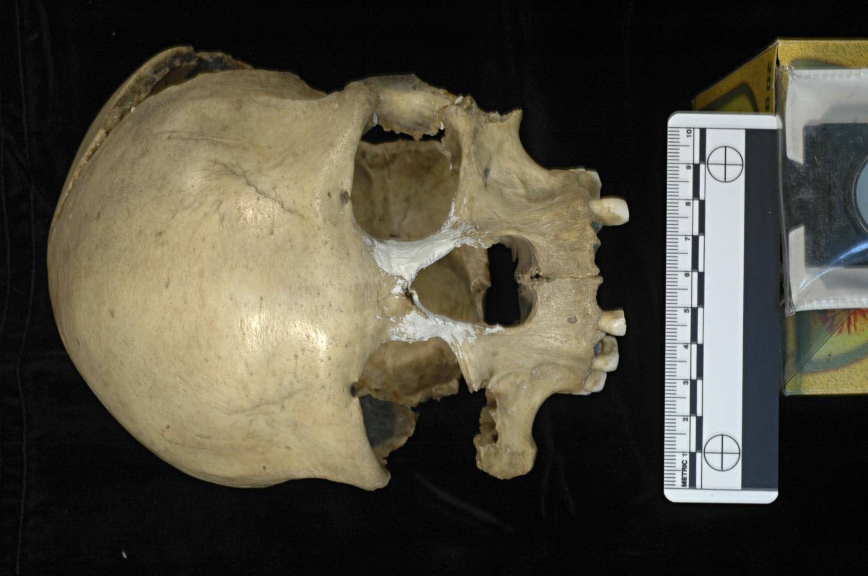 Craniul femeii din Peștera Muierii. Sursa foto :E. Trinkaus and A. Soficaru, eurekalert.org.